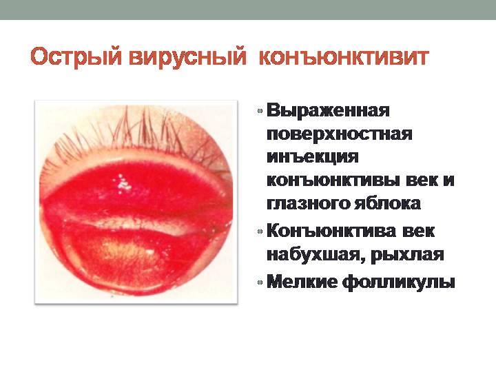 Конъюнктивит отит кашель вирус